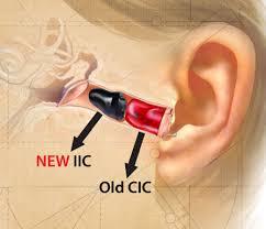 آناتومی استفاده از سمعک در گوش